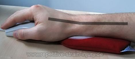 handgelenk-wristee